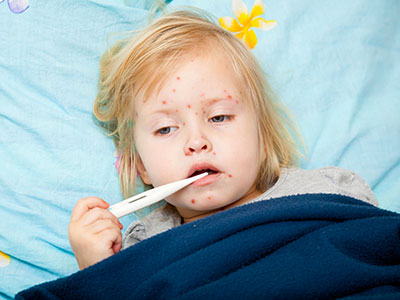 Little girl in bed with measles.