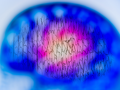 EEG with electrical activity of abnormal brain at risk of SUDEP