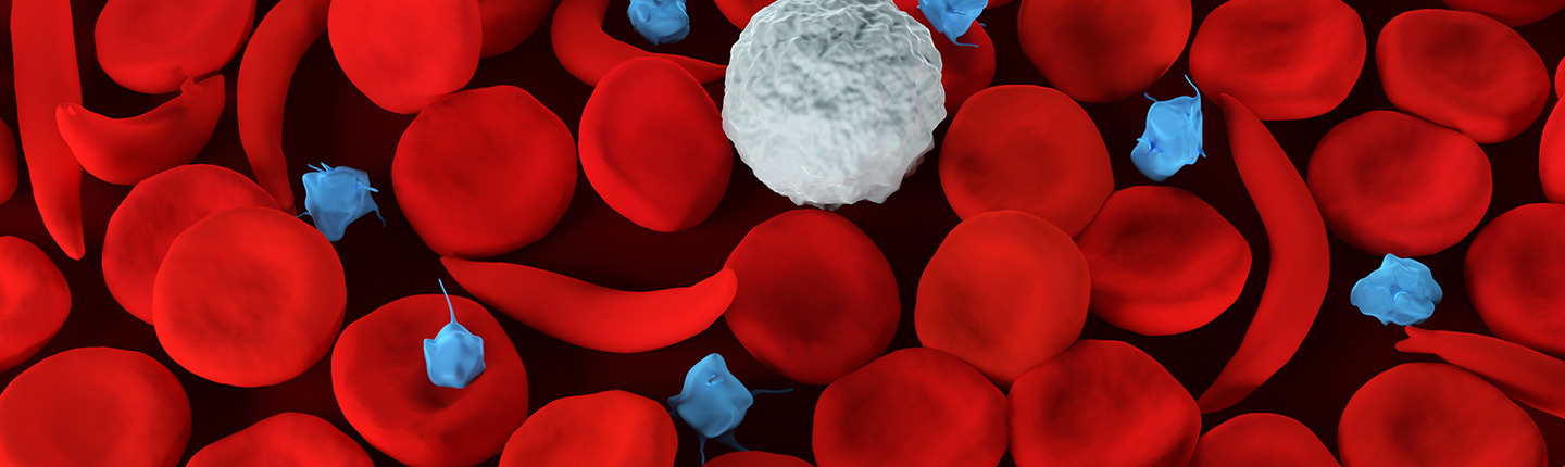 red blood cells with sickle cell disease